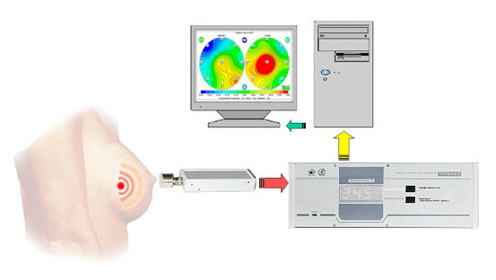 breast scan system, breat scan, RTM microwave breast scan